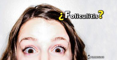 foliculitis en el cuero cabelludo