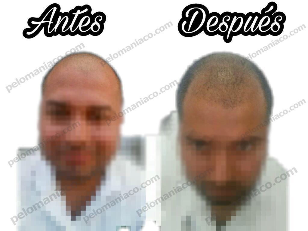 Minoxidil Mexico Testimonio Pelomaniaco.com