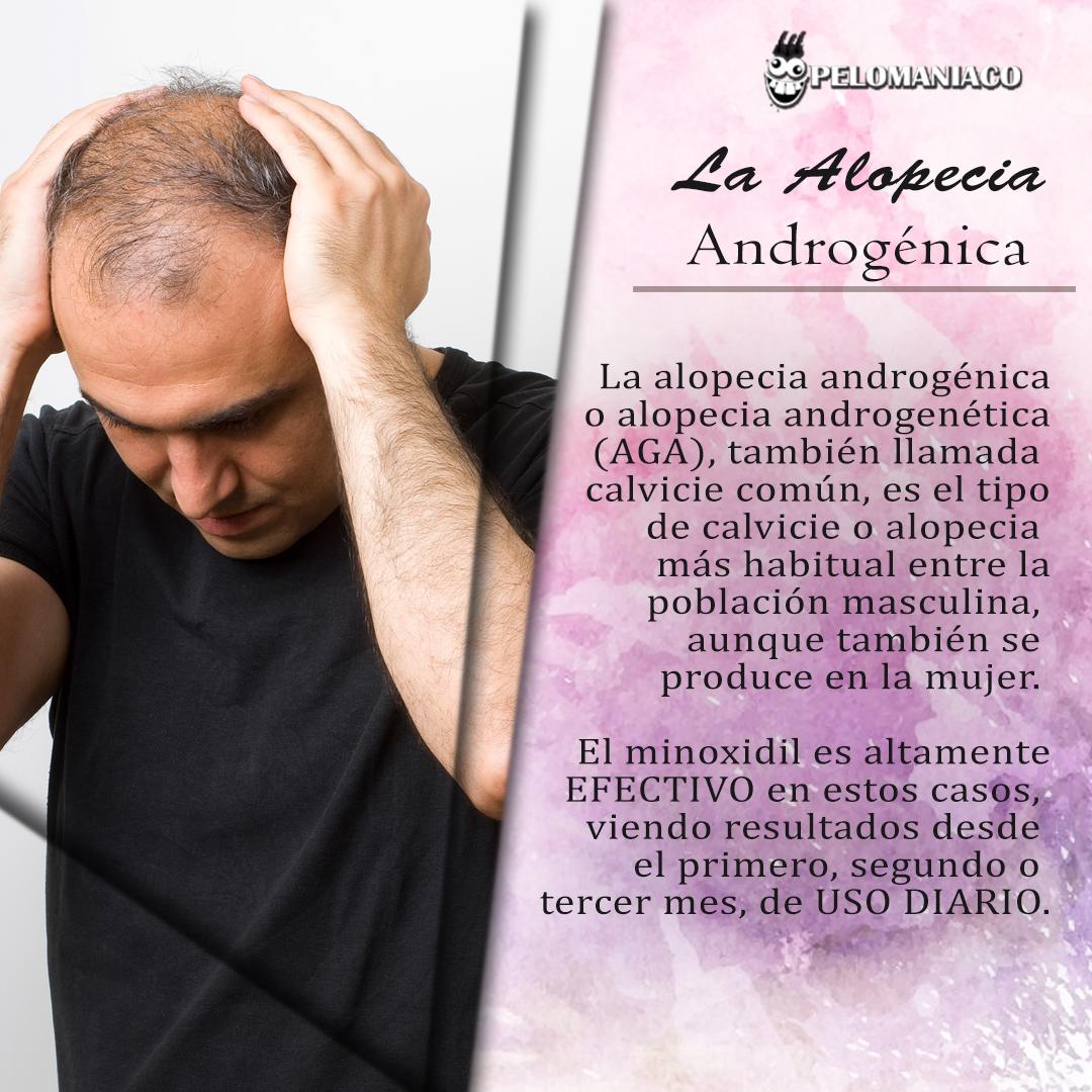 Minoxidil en Tampico Alopecia androgenetica