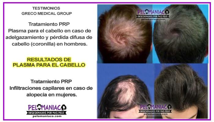 Plasma para el cabello resultados tratamiento PRP Alopecia