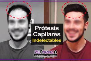Protesis capilares indetectables donde comprar y precios