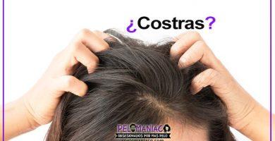costras en el cuero cabelludo causas y remedios caseros