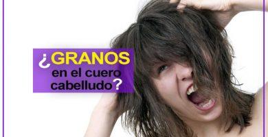 granos en el cuero cabelludo tipos y causas