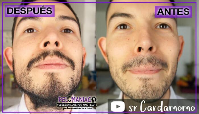 aceite de bergamota para hacer crecer la barba antes y despues frontal