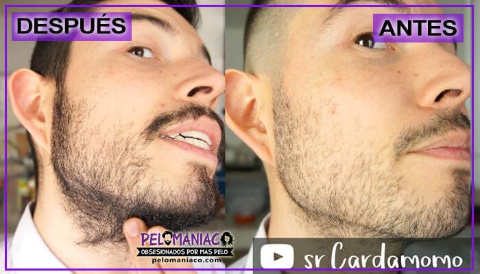 aceite de bergamota para la barba como usarlo lateral derecha
