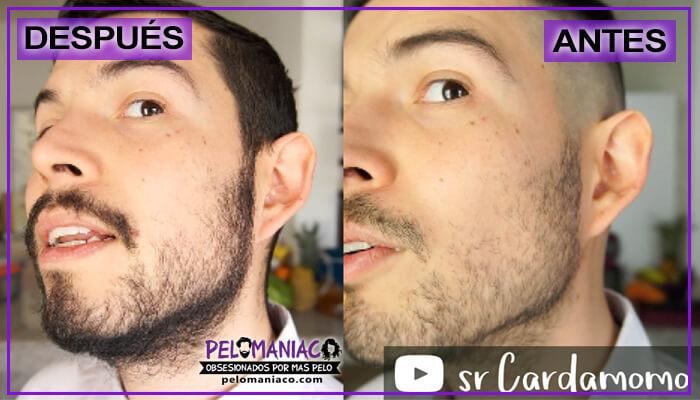 aceite de bergamota para la barba resultados antes y despues foto lateral izquierda