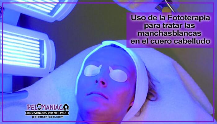 manchas blancas en el cuero cabelludo fototerapia
