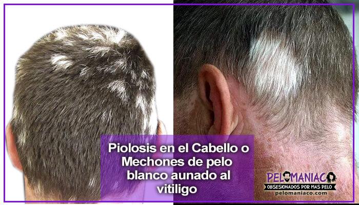 poliosis en el cabello y el vitiligo