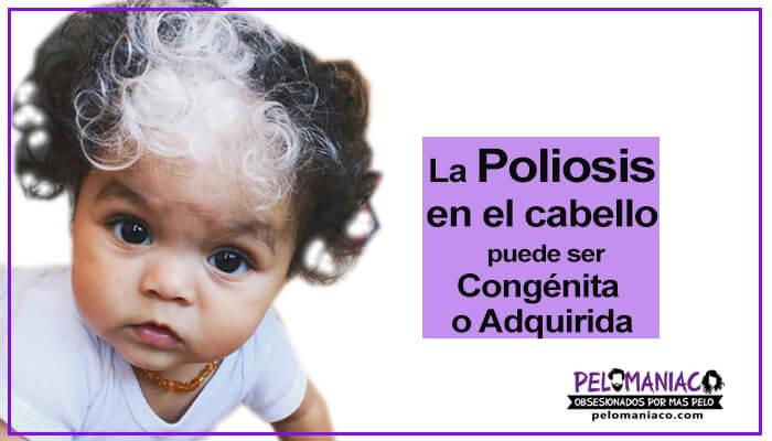 tipos de poliosis en el cabello parches blancos en el pelo