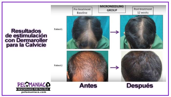 resultados antes y despues con dermaroller en caso de alopecia y calvicie