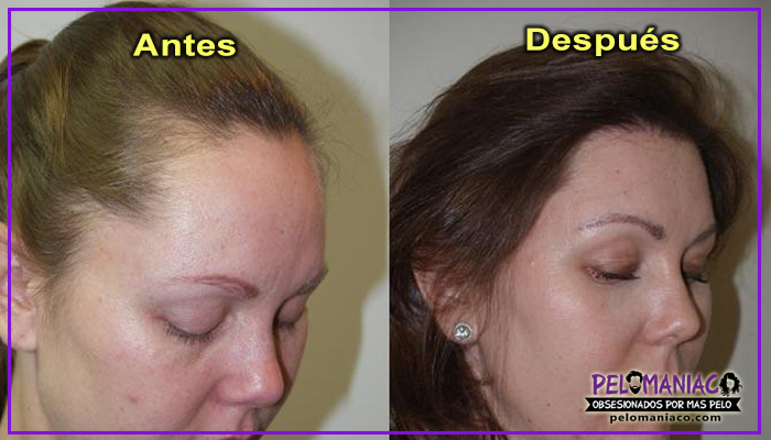 microinjerto capilar mujeres antes y despues Foundation for Hair Restoration