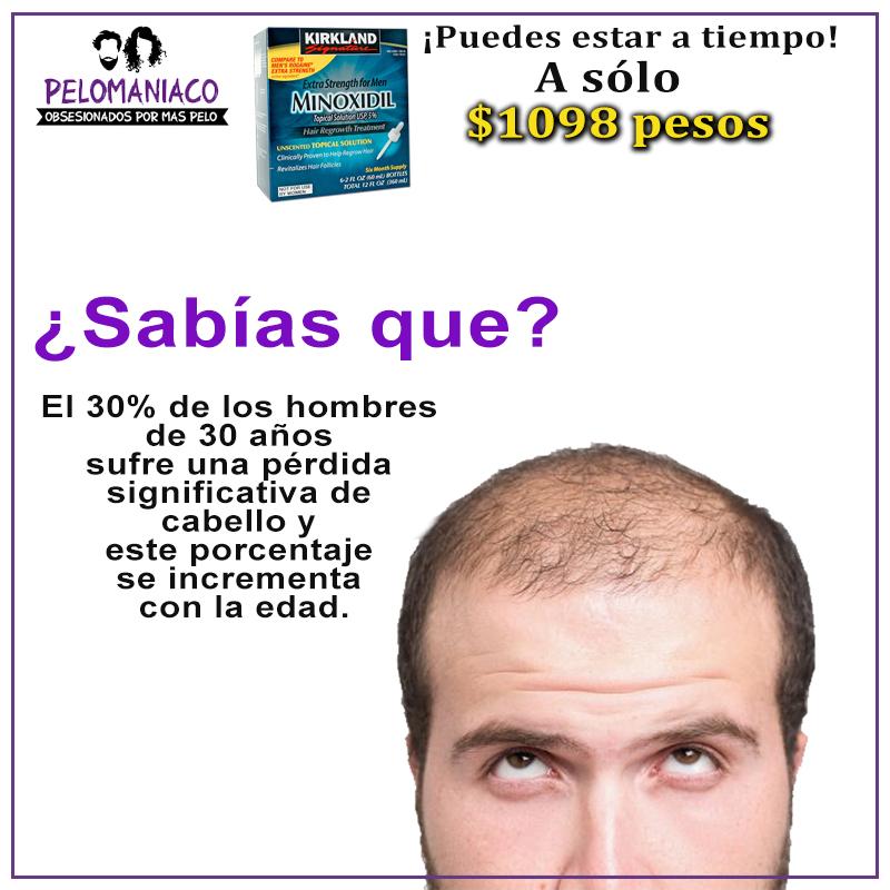 Minoxidil Mexico para Alopecia y calvicie