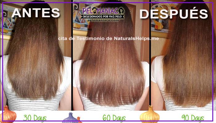 shampoo de cebolla resultados antes y despues
